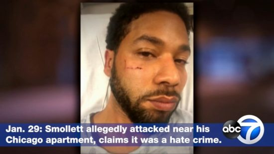 Smollett attack with careful wording